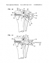 High Tibial Osteotomy Device and Method
